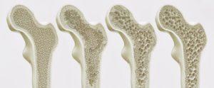 Osteoporosi avanzamento