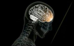Disturbi neurologici