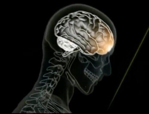 Disturbi neurologici: cosa sono e come agire