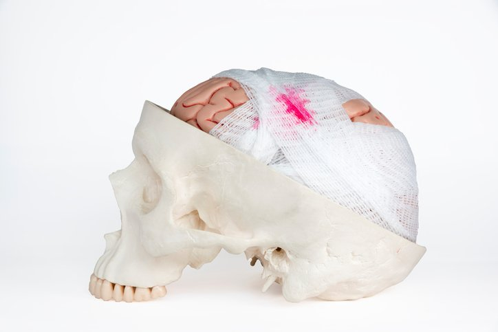 Lesione cerebrale